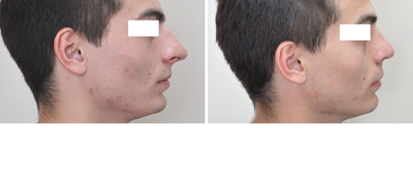 Rhinoplasty case #10