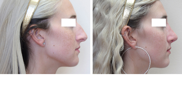 Rhinoplasty case #12