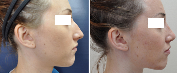 Rhinoplasty case #2