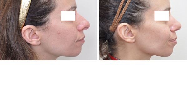 Rhinoplasty case #3