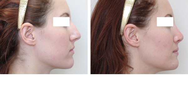Rhinoplasty case #6