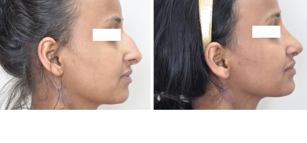 Rhinoplasty case #7