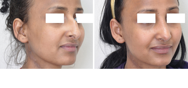Rhinoplasty case #8