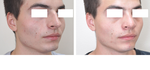 Rhinoplasty case #9