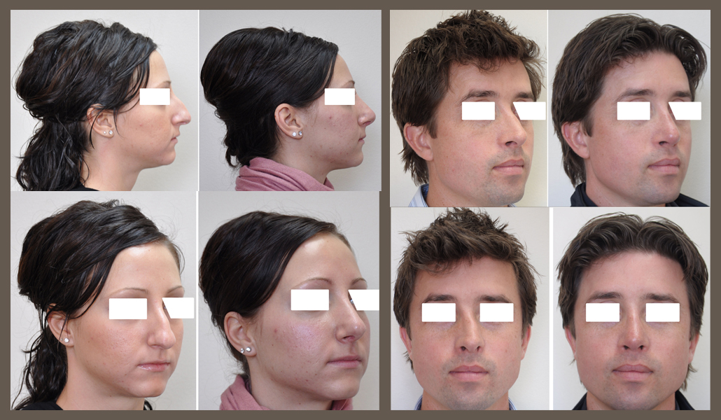 More rhinoplasties